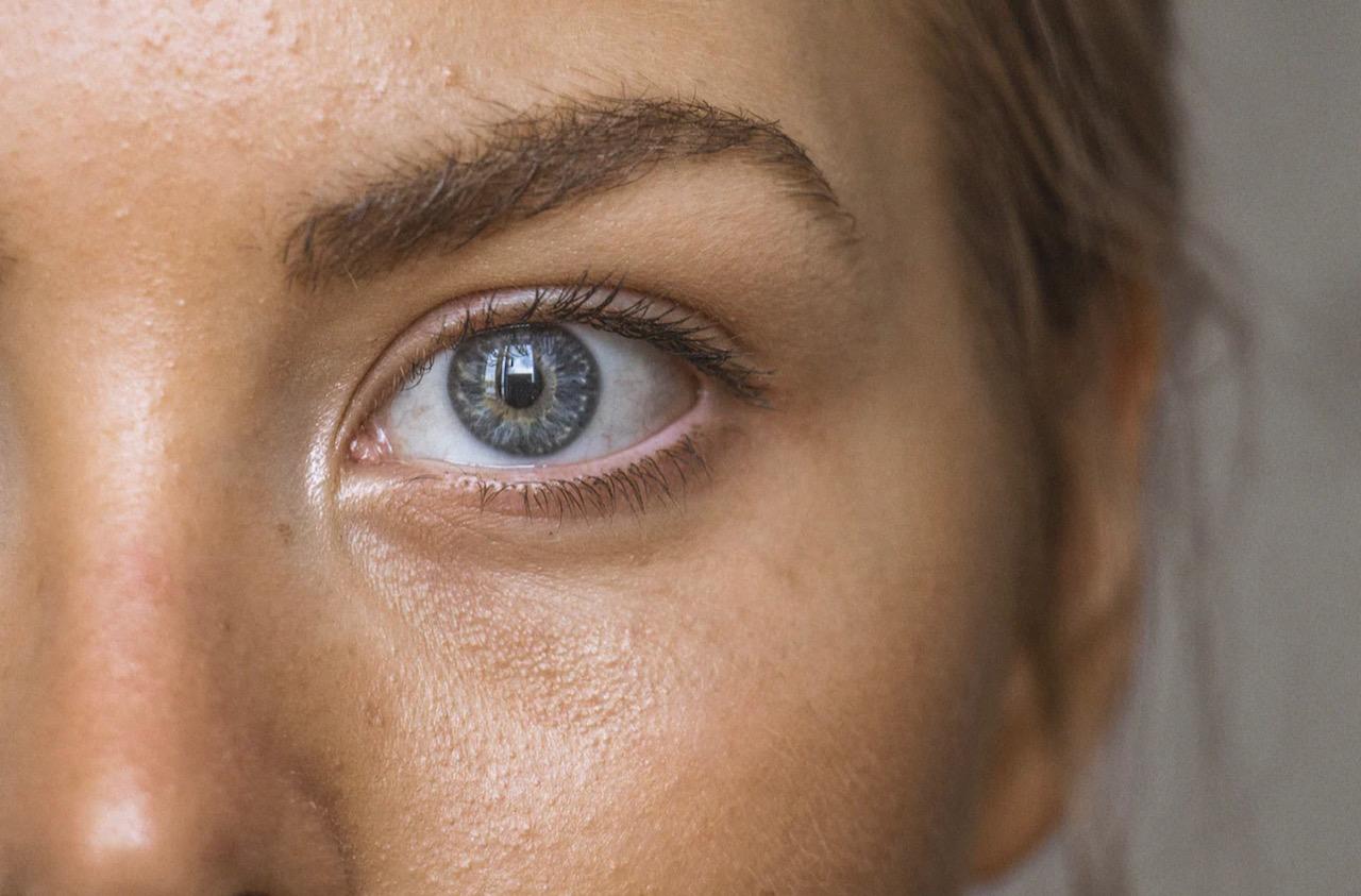 סובלים מעור אדמומי ומגורה? ייתכן ויש לכם סבוריאה